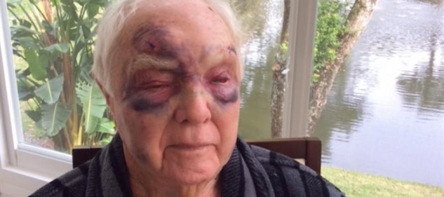 Douglas Brochet : un Snowbird lamentablement agressé à Lauderhill (Floride)