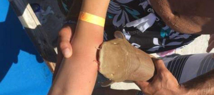 Boca Raton : une femme à l'hôpital avec un requin accroché au bras !